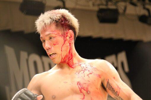blessure-boxeur